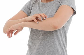 Sensitive Dry Skin